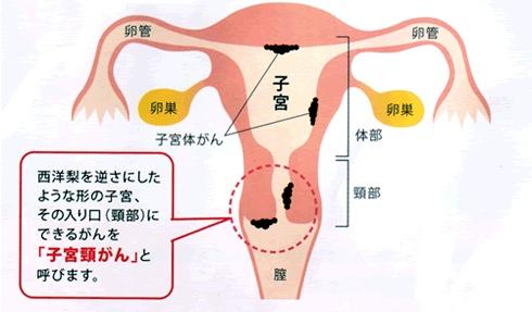 子宮頸がんとは?