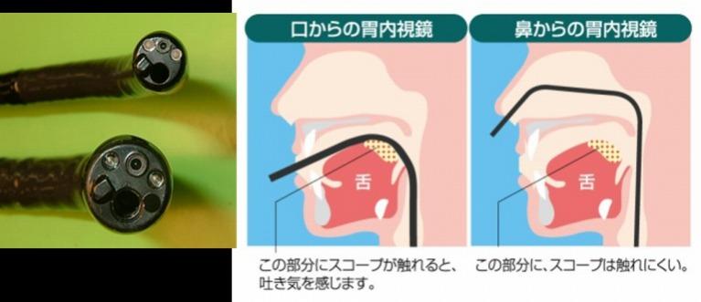 経鼻内視鏡検査のメリット