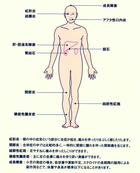 壊疽性膿皮症