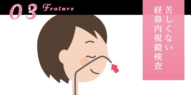 苦しくない経鼻内視鏡検査
